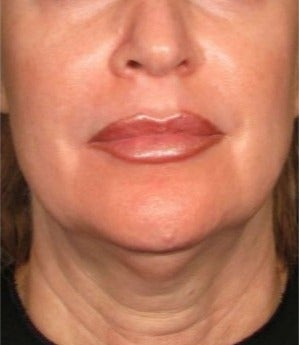45-54 year old woman treated with Ultherapy before 2180858