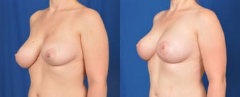 35-44 year old woman treated with Breast Lift with Implants 3536471