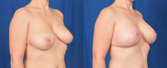 35-44 year old woman treated with Breast Lift with Implants after 3536471