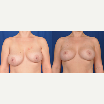 35-44 year old woman treated with Breast Lift with Implants before 3536471