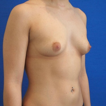 18-24 year old woman treated with Breast Augmentation before 3497300