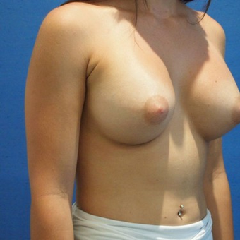 18-24 year old woman treated with Breast Augmentation after 3497300