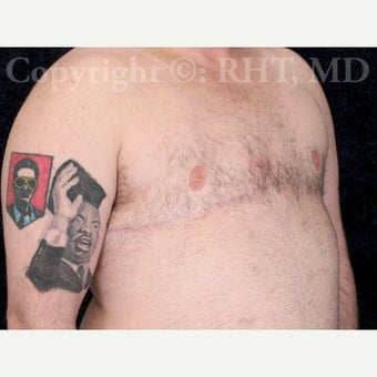 "30 yo F-M transgender patient man received ""top surgery"" mastectomies and NAC reductions for Chest Masculinization 1921228"