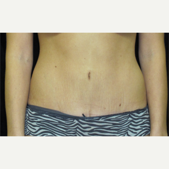 25-34 year old woman treated with Tummy Tuck after 3425134