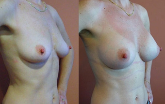 Breast Implants before 974250