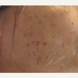 55-64 year old woman treated with Age Spots Treatment before 2680924