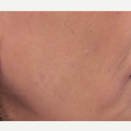 55-64 year old woman treated with Age Spots Treatment after 2680924