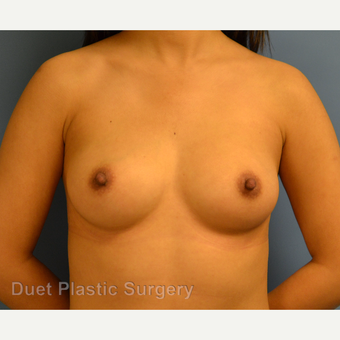 25-34 year old woman treated with Breast Augmentation before 3342113