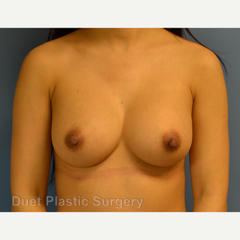 25-34 year old woman treated with Breast Augmentation after 3342113