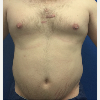 25-34 year old man treated with Liposuction before 3495907
