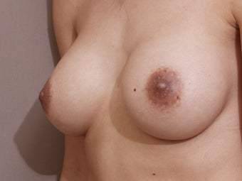 "Nipple reduction with ""no scar"" technique after 1262764"