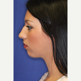 25-34 year old woman treated with Chin Liposuction after 3260026