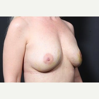 25-34 year old woman treated with Fat Transfer to breast for breast enlargement 1751925