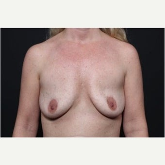 25-34 year old woman treated with Fat Transfer to breast for breast enlargement before 1751925