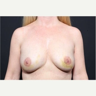 25-34 year old woman treated with Fat Transfer to breast for breast enlargement after 1751925