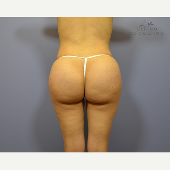 25-34 year old woman treated with Butt Implants after 3329554
