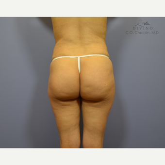 25-34 year old woman treated with Butt Implants before 3329554
