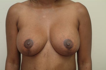 38 year old woman who complains of droopy breasts.