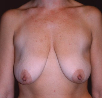 Breast Mastopexy 410358