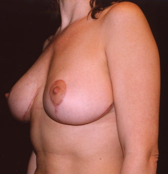Breast Mastopexy after 410358