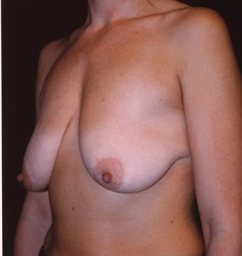 Breast Mastopexy before 410358