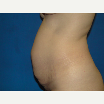 34 year old treated with Tummy Tuck before 3787821