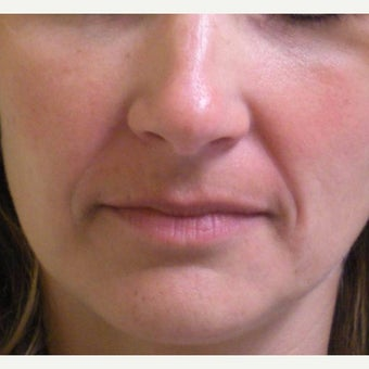 35-44 year old woman treated with Juvederm before 2045329