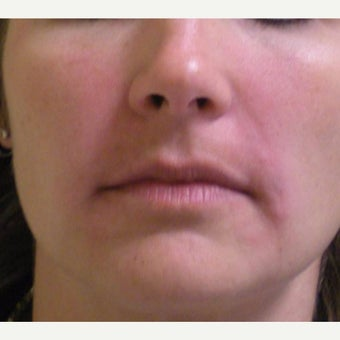 35-44 year old woman treated with Juvederm after 2045329