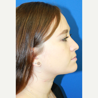 18-24 year old woman treated with Rhinoplasty after 3741474