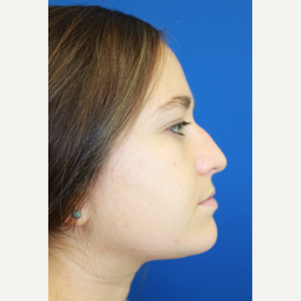18-24 year old woman treated with Rhinoplasty before 3741474