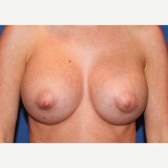 45-54 year old woman treated with Breast Augmentation after 3289196