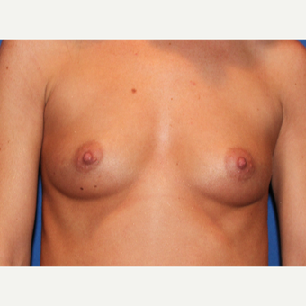 45-54 year old woman treated with Breast Augmentation before 3289196