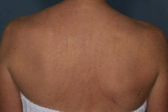 Female treated for Sunspots/Photoaging after 772028
