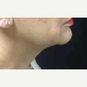 55-64 year old woman treated with Kybella to the anterior Neck after 3369733