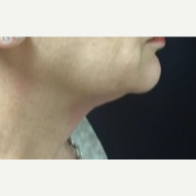 55-64 year old woman treated with Kybella to the anterior Neck before 3369733