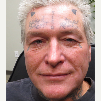 45-54 year old man treated with Tattoo Removal before 3145075