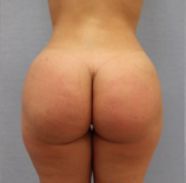 Body reshaping with large volume fat fat transfer to the buttocks (Brazilian butt lift) after 2726801