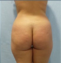 Body reshaping with large volume fat fat transfer to the buttocks (Brazilian butt lift) before 2726801