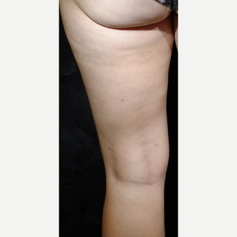 25-34 year old woman treated with Cellulaze after 3220566