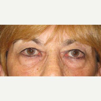 Upper Blepharoplasty before 3084677