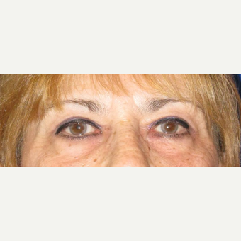 Upper Blepharoplasty after 3084677