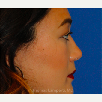 25-34 year old woman treated with Asian Rhinoplasty after 3703778