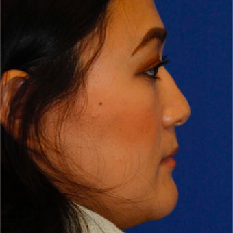 25-34 year old woman treated with Asian Rhinoplasty before 3703778