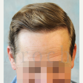 Middle Age man treated with 3000+FUSS Hair Transplant after 3320350