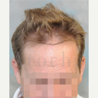 Middle Age man treated with 3000+FUSS Hair Transplant before 3320350