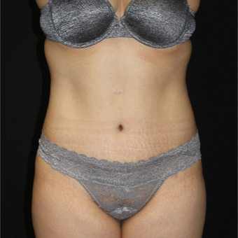 25-34 year old woman treated with Tummy Tuck after 3853726