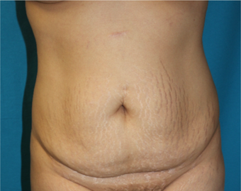 25-34 year old woman treated with Tummy Tuck before 3853726