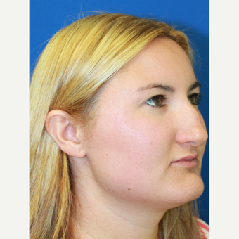 25-34 year old woman treated with Rhinoplasty before 3813515