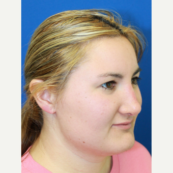 25-34 year old woman treated with Rhinoplasty after 3813515