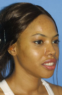 Ethnic Rhinoplasty after 1109788